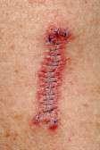 Biopsia cutanea
