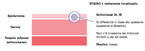 Melanoma in stadio 1