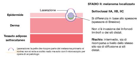 Melanoma in stadio 2