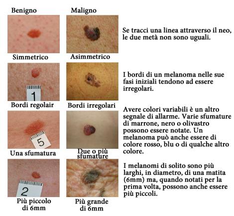Come distinguere un neo da un melanoma