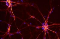 Scoperto il ruolo della proteina X fragile nel melanoma
