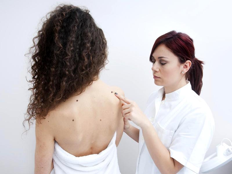 Melanoma, l'immunoterapia funziona anche nelle fasi precoci - Melanoma Italia Onlus