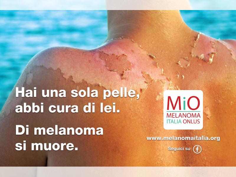 Maggio mese della prevenzione: abbi cura della tua pelle. Di melanoma si muore.